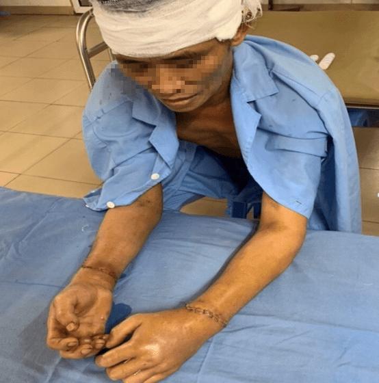 30 y bác sĩ căng thẳng 8 tiếng vừa mổ sọ não vừa nối 2 tay bệnh nhân