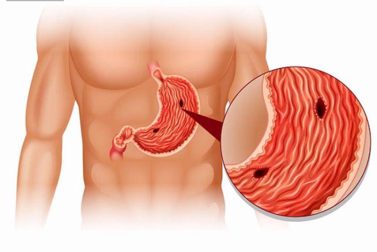 Bệnh loét dạ dày và những điều bạn nên biết