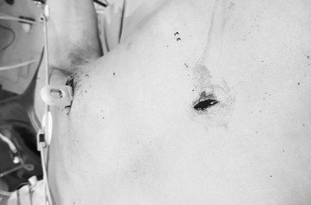 Các vết thương ở ngực và vùng thượng vị của bệnh nhân do dao Thái Lan đâm