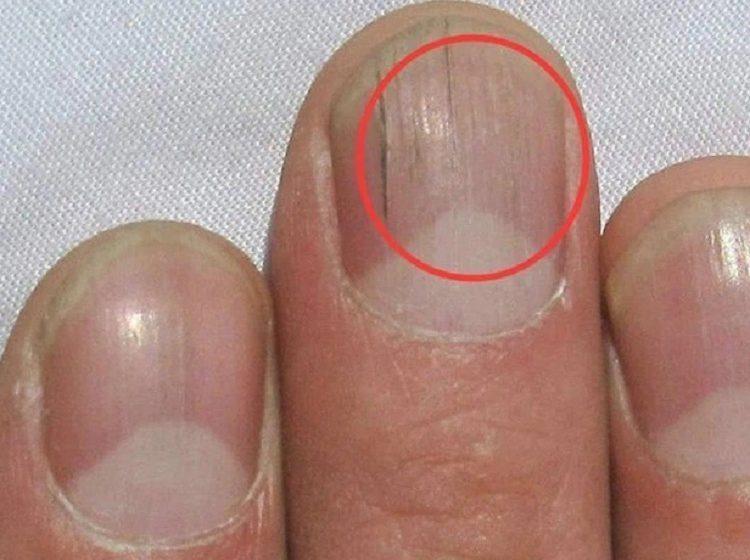 Móng tay xuất hiện các đường kẻ dọc bất thường, coi chừng là dấu hiệu của bệnh tật, bạn nên đi khám nhanh còn kịp
